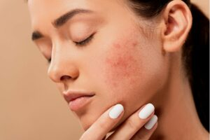 rosacea, Gesichtbehandlung, Kosmetikinstitut Heidelberg, Haut Probleme.