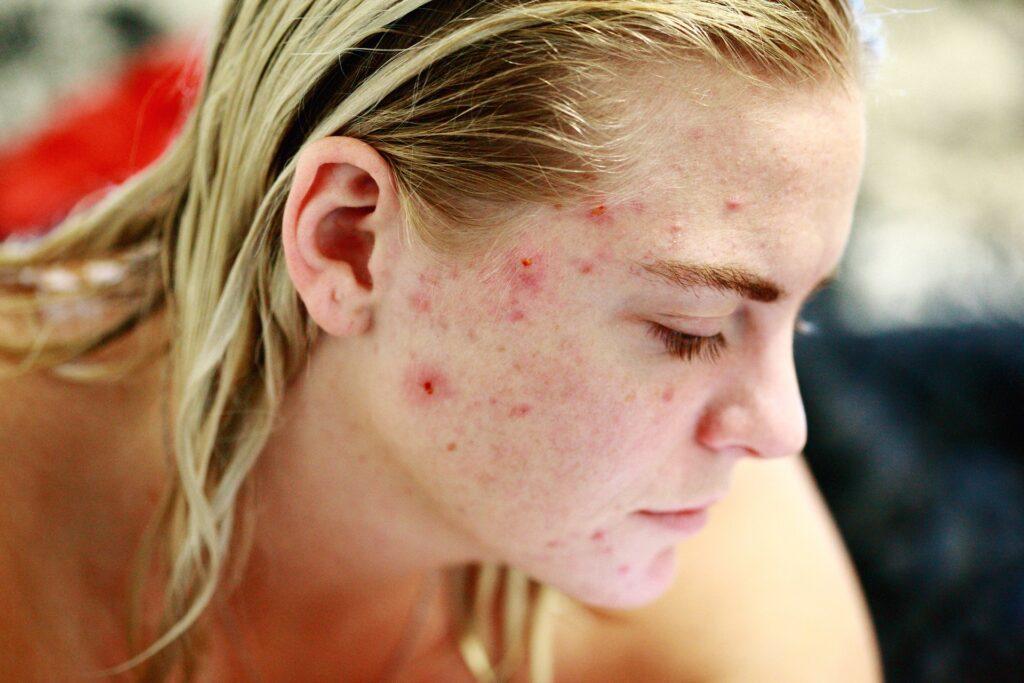 Akne Haut, Akne Behandlung in Heidelberg, unreine Haut